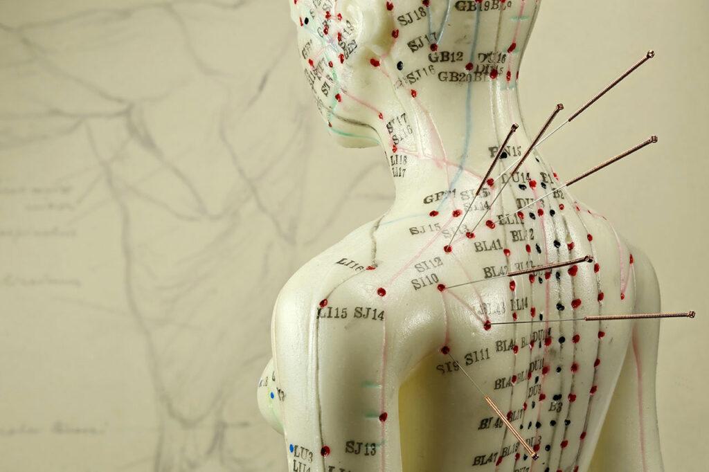 Akupunkturmeridianer